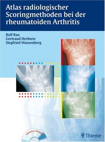Rau, Rolf / Herborn, Gertraud / Wassenberg, Siegfried - Atlas der Scoringmethoden bei der rheumatoiden Arthritis: Inkl. CD-ROM mit Buch als pdf