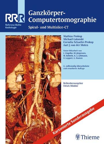 Prokop, Mathias & Galanski, Michael - Ganzkörper-Computertomographie - Spiral- und Multislice-CT