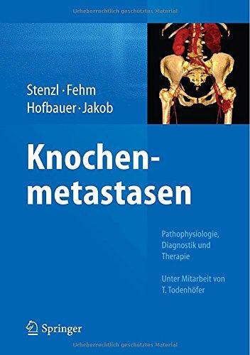 Stenzl, Arnulf / Fehm, Tanja / Hofbauer, Lorrenz C. / Jakob, Franz (HG) - Knochenmetastasen: Pathophysiologie, Diagnostik und Therapie
